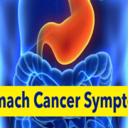 What are the symptoms of stomach cancer?