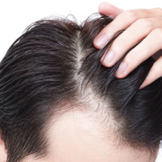 Hair tips treatment for men at home in tamil